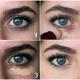Чем замазать синяки под глазами?