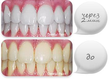 Отбеливание зубов диодным лазером