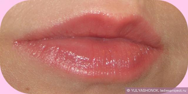 Увеличение губ гелем до и после