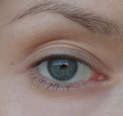Синяки под глазами как следствие образа жизни