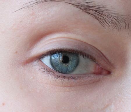 Темные круги под глазами - причины болезни виды как убрать