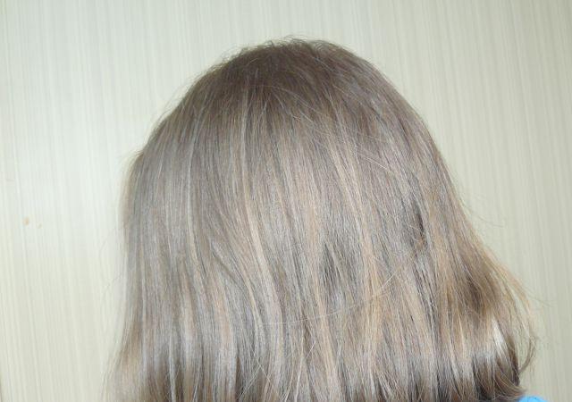 Купить alterna для роста волос пережили заболевание, которое