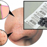 6 масок от черных точек с активированным углем